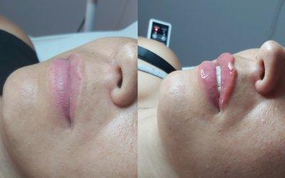 Kwas hialuronowy – modelowanie ust